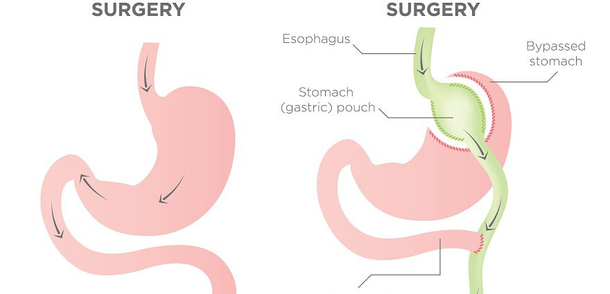 Gastric Bypass Surgery Can It Work For You What Does It Cost