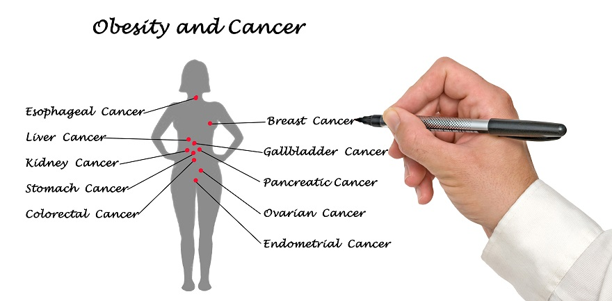 The Connection Between Obesity And Cancer