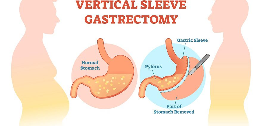 Gastric Sleeve Surgery Is Vertical Sleeve Gastrectomy Right For You
