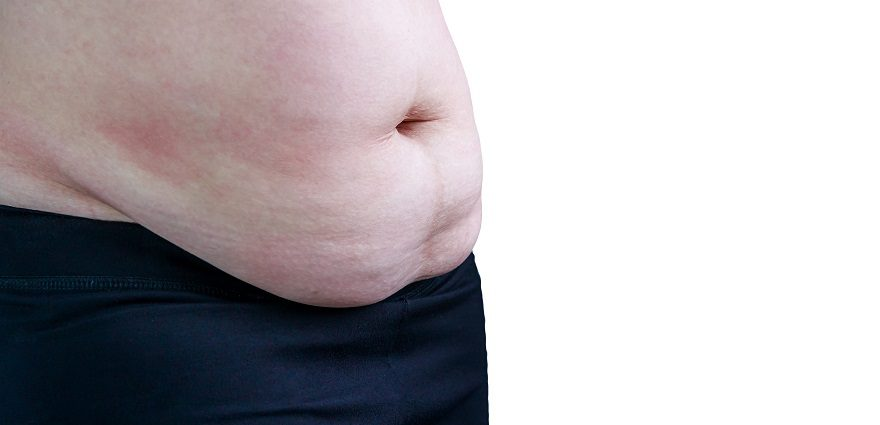 Panniculectomy Surgery | Post-Bariatric Body Contouring
